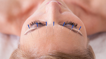 Facial Acupuncture Cheltenham