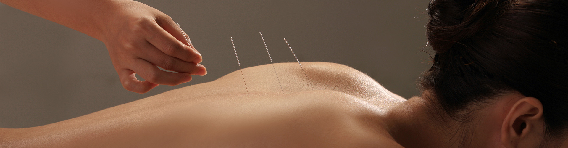 ACUPUNCTURE, MASSAGE AND REFLEXOLOGY</BR>TO HELP A WIDE RANGE OF CONDITIONS